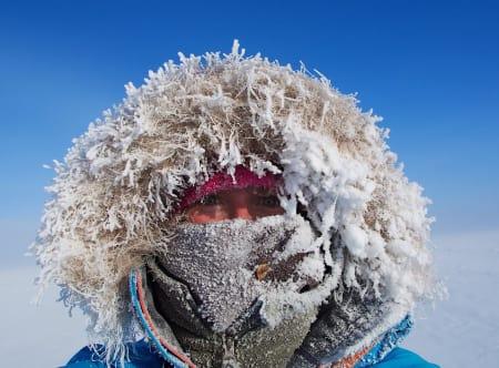 Forfrysning og frostskader